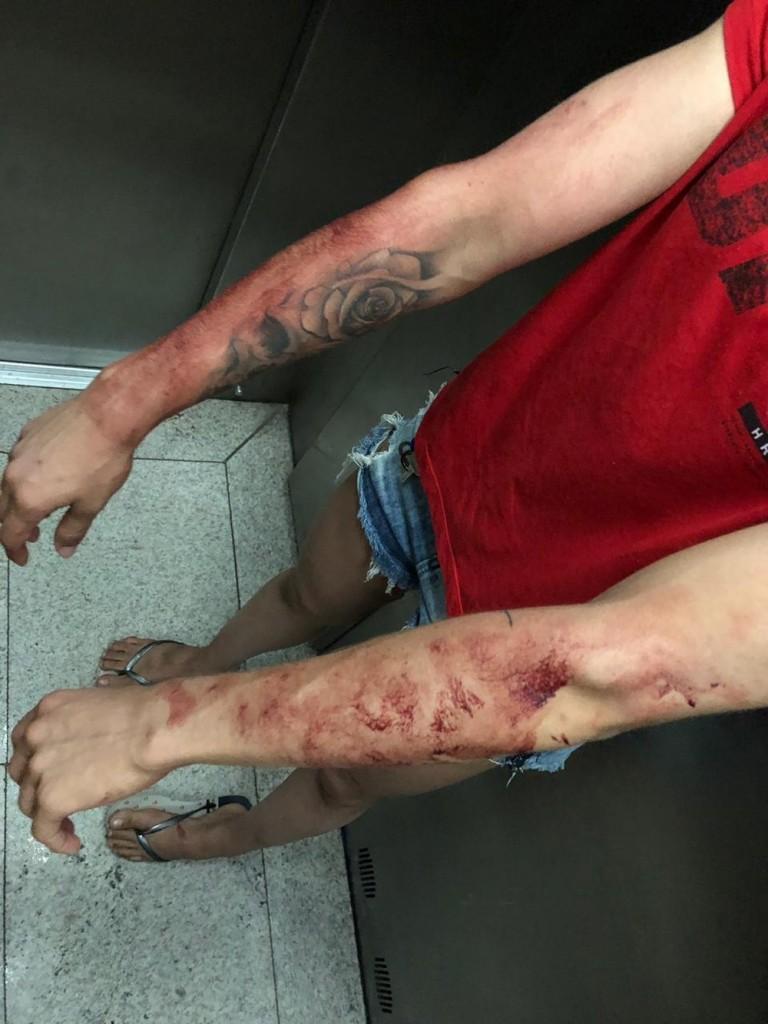photo 2019 01 06 21 32 55 2  - ERRO DE CÁLCULO: Criminoso escolhe mulher para assaltar, mas não sabia que era uma lutadora de UFC e leva surra
