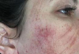 ESTÉTICA DESFAVORÁVEL: Mulher tem com rosto 'arranhado' após realizar procedimento com laser