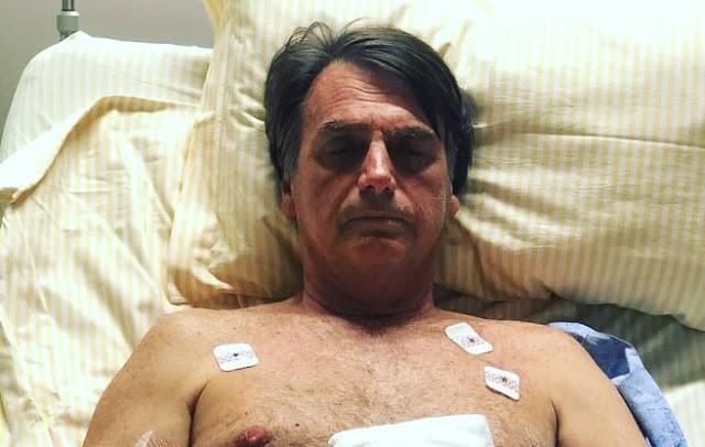 bolsonaro hospitalizado 1 - SUCESSO: Cirurgia de Bolsonaro chega ao fim após cinco horas de duração