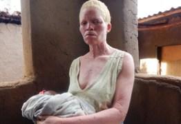'Tenho medo de dormir': a cruel caçada por ossos de albinos no Malauí