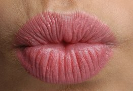 CUIDADOS: saiba como lidar com a doença do beijo no Carnaval – VEJA VÍDEO