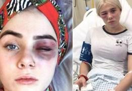 Estudante com misteriosa alergia precisa explicar que não é vítima de abuso em casa