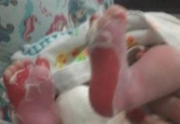 Recém-nascido que sofreu queimaduras nos pés segue internado no Trauma de JP