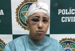 Mulher é desarmada e baleada ao tentar assaltar ônibus – VEJA VÍDEO