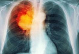 Cientistas conseguem curar o câncer em apenas 11 dias sem o uso de quimioterapia
