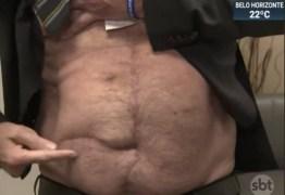 Fotógrafo afirma que cicatriz exibida por Bolsonaro não é da facada, mas de cirurgia