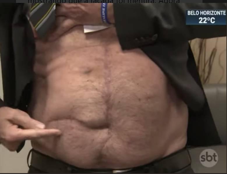 cicatriz bolsonaro - Fotógrafo afirma que cicatriz exibida por Bolsonaro não é da facada, mas de cirurgia