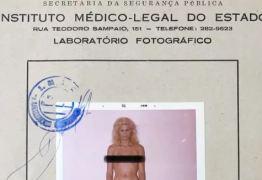 """""""MONSTRO, PROSTITUTA E BICHINHA"""" conheça a humilhante história da primeira cirurgia de mudança de sexo feita no Brasil"""