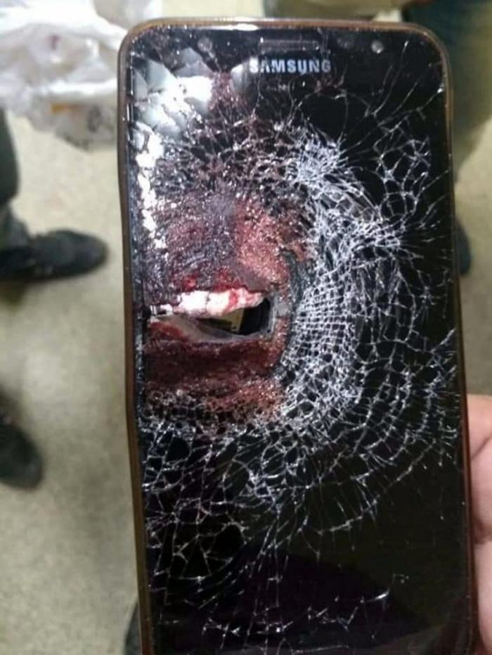 1 celular 11401991 - Durante assalto, policial é baleado e celular amortece impacto do projétil