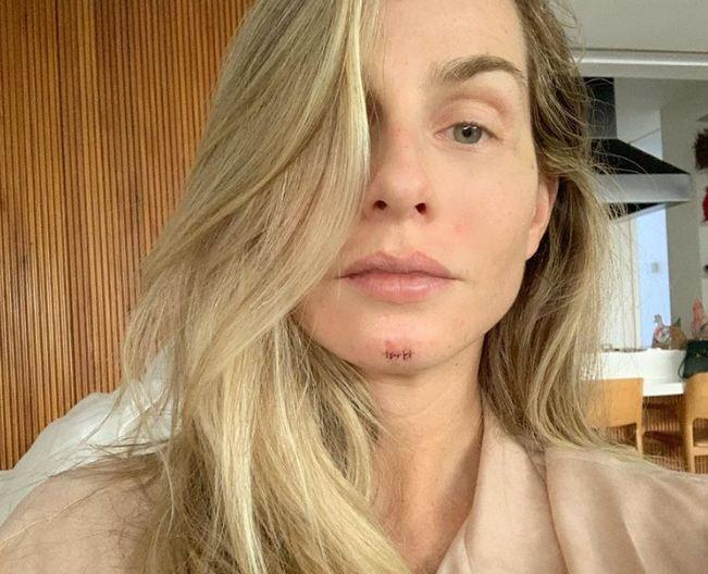 SUSTO: Jornalista da Record surge com o rosto cortado, tenta se explicar e deixa público incrédulo