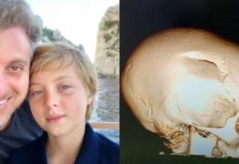 Luciano Huck publica foto de lesão do filho e faz alerta: 'Use capacete'