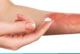 Substâncias inadequadas em queimaduras podem agravar o dano causado à pele, afirma dermatologista