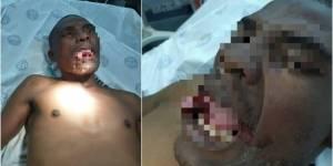 tonguebf23 7c15e5954d4f5ffce17d19211cdde3b2 1200x600 300x150 - DEFESA: Médica arranca parte da língua de homem que tentou estuprá-la durante consulta