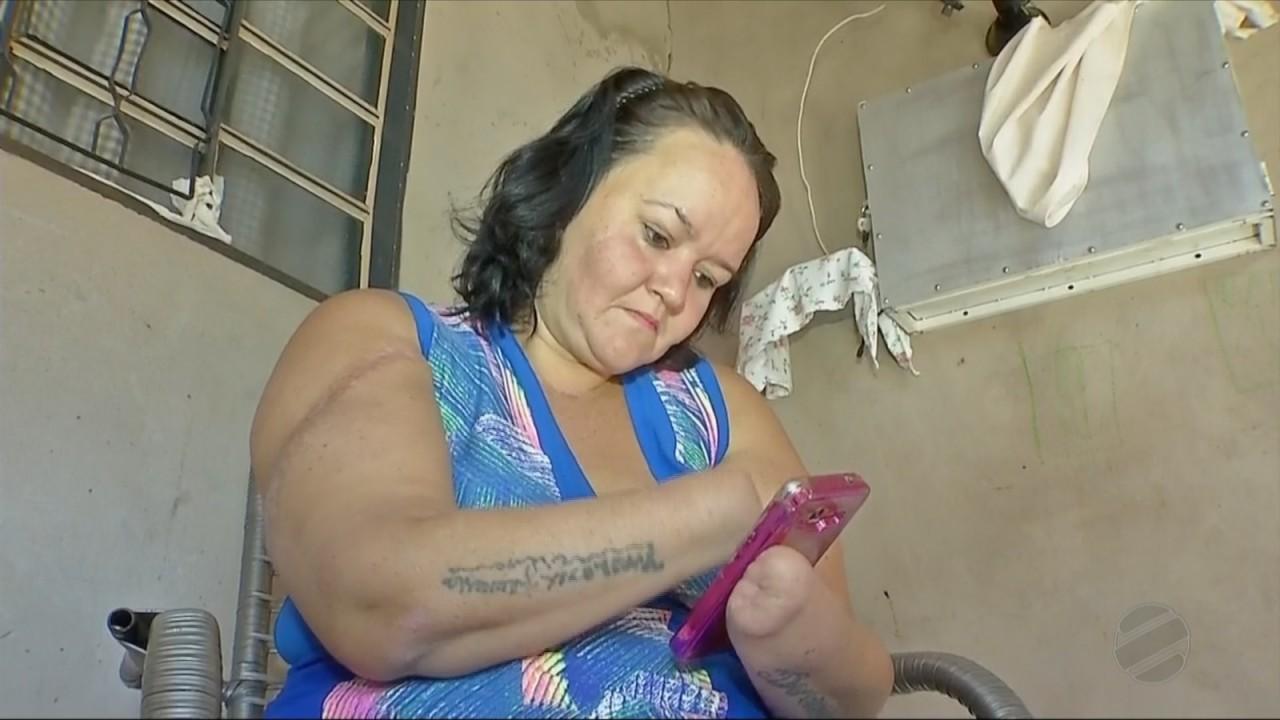 maos decepadas4 - 'Não há Justiça que pague', diz mulher sobre ex-marido condenado por decepar as mãos dela
