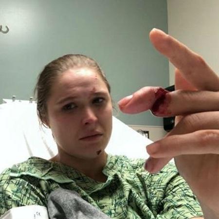 ronda rousey mostra dedo machucado 1566354589259 v2 450x450 - IMAGEM FORTE: Ronda Rousey sofre acidente em filmagem e quase perde dedo da mão