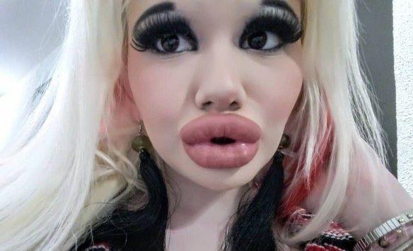 boca 2 - Estudante gasta mais de R$ 10 mil para ter os maiores lábios do mundo
