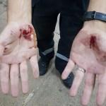 andre luis ferreira lima fica ferido apos ser atingido por disparos de arma de choque no df 1571247388636 v2 450x600 - 'QUANTO MAIS EU PEDIA PARA PARAR, MAIS CHOQUE LEVAVA': Agentes do Detran usam arma de choque contra autônomo após discussão