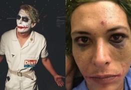 'APANHEI POR 40 MINUTOS DE UMAS 12 PESSOAS': Homem que se vestiu de Coringa para evento de games em São Paulo acusa seguranças de tortura – IMAGENS FORTES