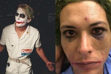 cosplayer - 'APANHEI POR 40 MINUTOS DE UMAS 12 PESSOAS': Homem que se vestiu de Coringa para evento de games em São Paulo acusa seguranças de tortura - IMAGENS FORTES