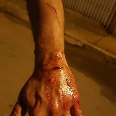 homem mostra ferimento - Engenheiro mata cachorro com taco de beisebol, paga R$ 5 mil e é liberado