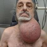 milton wingert 81 teve que retirar o tumor que pesava entre 2 e 3 kg 1573766553206 v2 750x421 - TINHA 3 QUILOS: Homem tira tumor do tamanho de uma bola de futebol do pescoço