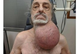 TINHA 3 QUILOS: Homem tira tumor do tamanho de uma bola de futebol do pescoço