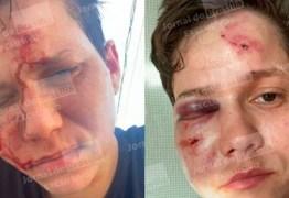 CRIME DE HOMOFOBIA: Amiga da família Bolsonaro sofre ataque no Rio de Janeiro