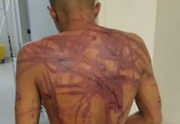 Jovem é sequestrado, torturado e espancado por oito homens