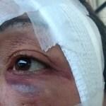 agressao dedo - CHUTE E COCÔ DE CACHORRO: Homem agride companheira no bairro da Liberdade por vê-la sentada na calçada