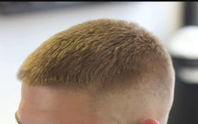 homem e baleado na cabeca na pb e motivacao pode ter sido cor de cabelo diz policia1575824499 - VIOLÊNCIA NA PB: Homem é baleado na cabeça e motivação pode ter sido cor de cabelo, diz polícia