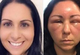 Mulher fica deformada após reação alérgica a tintura de cabelo