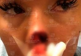 Homem não aceita o fim do namoro e arranca a mordida a ponta do nariz de mulher