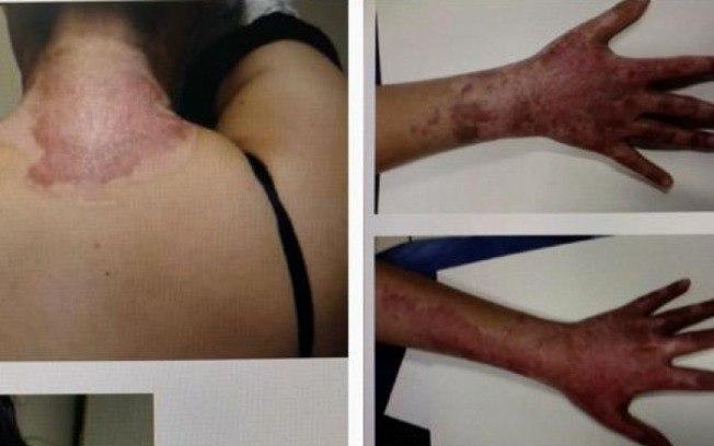 dfeqd4xgiocs1e3zbsgsemhc9 - Padrasto ateia fogo em enteada após ela interferir em agressões contra mãe