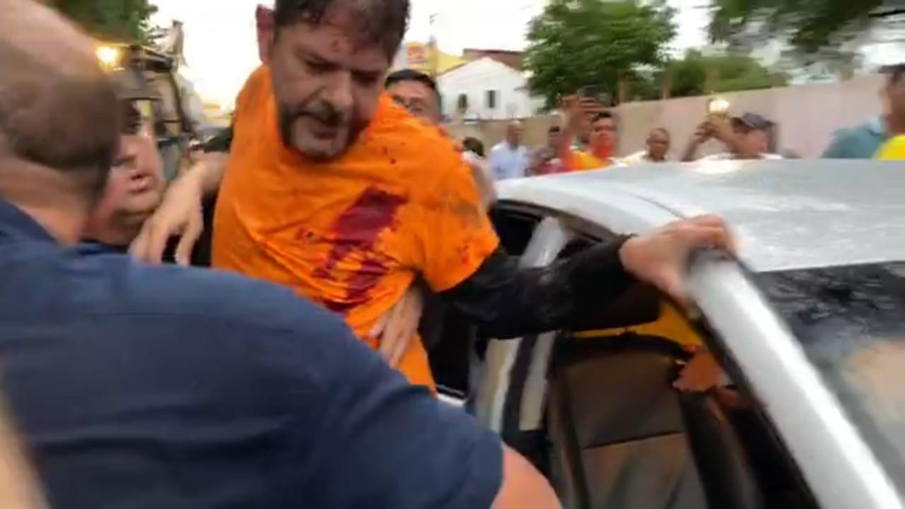 ac58a67f 236a 4d7c b2fb 925c588f65d9 - Após ser baleado, Cid Gomes passa por cirurgia e não corre risco de morte; VEJA VÍDEO