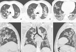 CORONAVÍRUS: Pacientes recuperados podem ter danos permanentes nos pulmões