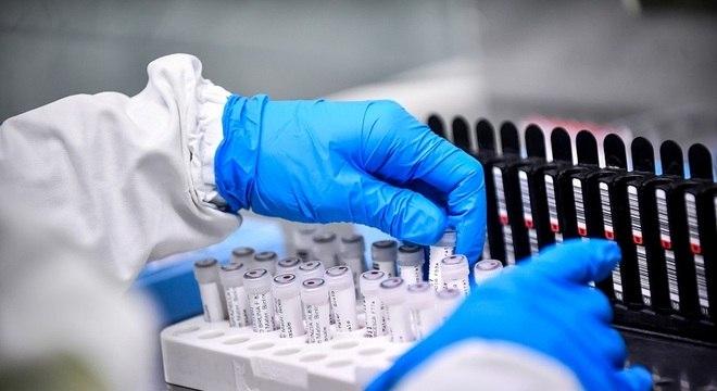 coronavirus exame 30032020130653912 - Divulgada lista de profissionais de saúde selecionados para atuar contra o coronavírus na PB