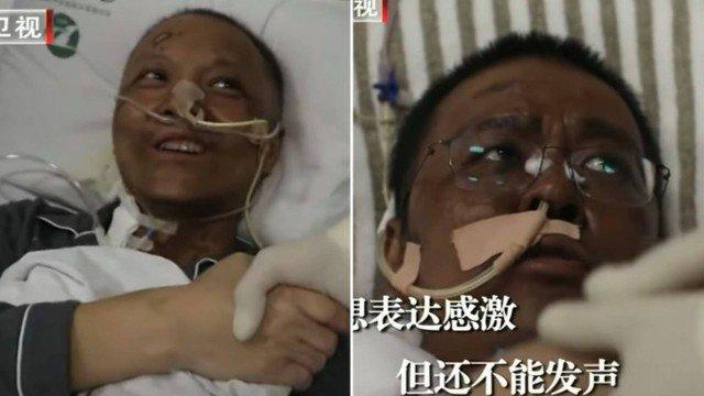 xblog chinese skin color doctors.jpg.pagespeed.ic .1Xz9eXcI4j - Pele do rosto de médicos chineses fica escura durante tratamento contra o coronavírus