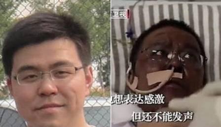 xblog doctor 1.jpg.pagespeed.ic .e4U3Ed PJK - Pele do rosto de médicos chineses fica escura durante tratamento contra o coronavírus