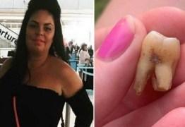 Sem dentista disponível, mulher toma 4 cervejas antes de arrancar dente sozinha