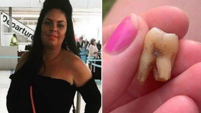 xblog tooth.jpg.pagespeed.ic .FdBKKSxMqo - Sem dentista disponível, mulher toma 4 cervejas antes de arrancar dente sozinha