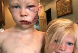 Super-heróis elogiam menino de 6 anos que salvou irmã de ataque de cachorro