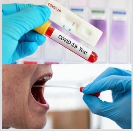 Capturar 8 - DIAGNÓSTICO DA COVID-19: Confira quais os exames mais confiáveis disponíveis na Paraíba