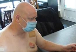 Homem é mordido no peito após briga por conta de máscara