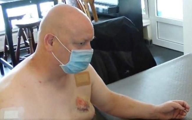 eyagsrxzggq4vv82u2t7w0qol - Homem é mordido no peito após briga por conta de máscara