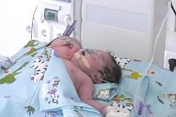 Mãe é obrigada a doar bebê com duas cabeças