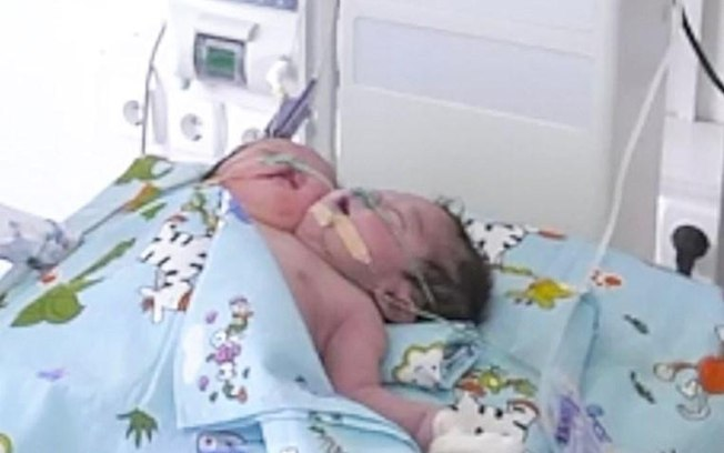 f3u1yxui421o0v2tna6mij95e - Mãe é obrigada a doar bebê com duas cabeças