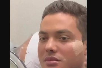Capturar 52 - 'Rostinho de bebê': Cantor Wesley Safadão faz harmonização facial; confira