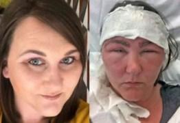"""Mulher quase morre após tingir as sobrancelhas: """"Grave reação alérgica"""""""