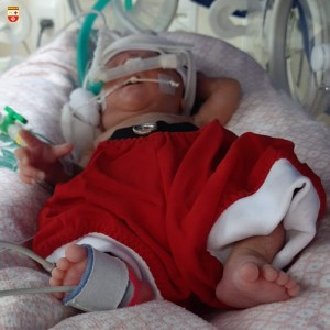 WhatsApp Image 2020 12 21 at 21.40.53 3 300x300 - Bebês de UTI neonatal fazem ensaio fotográfico para o Natal
