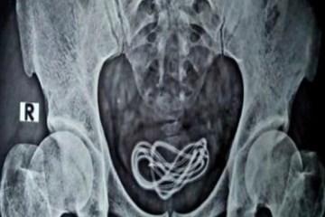 a1tx7gz0u2nljw94o9tngdlnu - Detento engole carregadores de celular e precisa passar por cirurgia